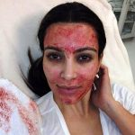 Kim-Kardashian-blood-facial